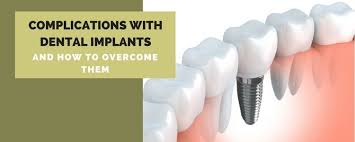 complications with dental implants and
