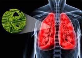 Питание при туберкулезе легких Лечится ли туберкулез
