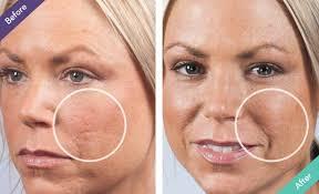 filler for acne pock marks