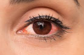 19 Red Eye Causes and How to Treat <b>Red Eyes</b>