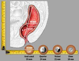 Hemorrhoid Size Chart What Are The Causes Of Hemorrhoids And Anal Fissures