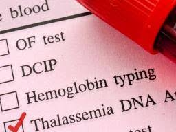 Thalassemia Types Symptoms And Treatment