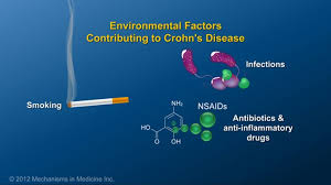 Image result for crohn's disease and smoking