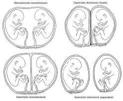 Types Of Twins Chart Types Of Twins Chart Twins Ultrasound Faternal Twins