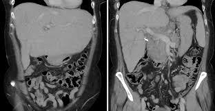 jaundice hepatosplenomegaly and