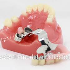 Dental Inlay Model With Restoration Bridge Onlay Inlay Implant Steel Buy Dental Demonstration Models Tooth Restoration Model Product On Alibaba Com