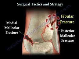 Ankle And Foot Fractures Physiopedia