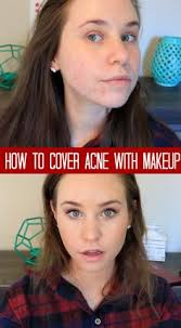 how to cover acne scars with makeup acne coverage foundation routine
