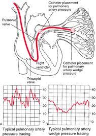 Hemodynamic Monitoring Definition Of Hemodynamic Monitoring By