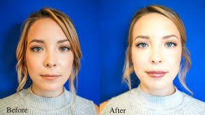 my first experience with lip injections