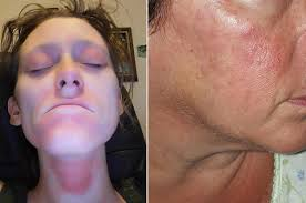 People Say These Neutrogena Products Are Leaving Their Face Burning ...