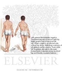 Hip Capsular Pattern Gorgeous Detecting Osteoarthritis Of The Hip The Cyriax Capsular Pattern