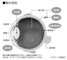 放置はng 眼の病気を治すと健康寿命が延びる 15 週刊朝日