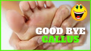 remove callus from feet natural callus remover