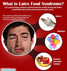 Latex Food Syndrome|Symptoms|Treatment|Common Foods Related to Latex ...