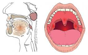 Ontstoken amandelen of beginnende keelpijn?