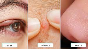 how to identify styes milia and pimples