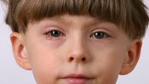 Eye Infections in Infants & Children - HealthyChildren.org