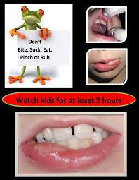 lip biting after treatment texas