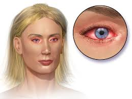Diseases Of The Eye - Livermore Optometry Group