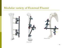 external fixator external fixator 52 728 jpg cb 1298383915