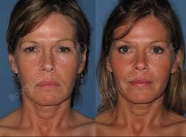 State college facial plastic surgery