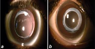 Posterior Capsule Opacification Rate After