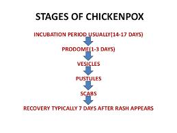 Chicken Pox Chart Chickenpox Ppt
