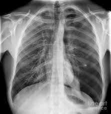 Pneumothorax X Ray