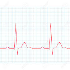 Medical Electrocardiogram Ecg On Grid Paper Graph Of Heart