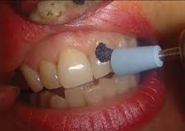 Реферат Отбеливание зубов ru  минерализации эмали зубов с помощью микроабразии Микроабразия это удаление микроскопически тонкого слоя эмали 12 26 мкм во время аппликации и до 200
