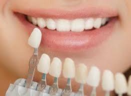 Cosmetic Dentistry Covina Porcelain Veneers Teeth Whitening