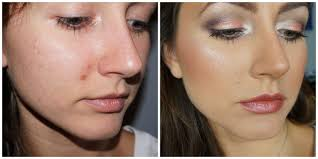 hide a pimple scab without makeup how to er a scab popped pimple pregnancystretchmarks