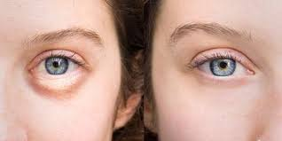 How to Get Rid of Puffy Eyes Fast & Naturally - SwellNoMore
