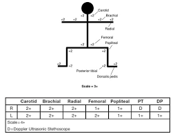 Peripheral Pulses Charting Peripheral Pulses Charting Related Keywords Suggestions