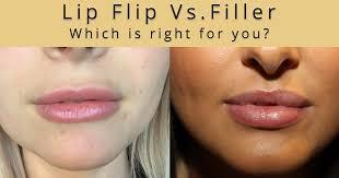 lip flip or lip filler which is