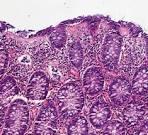 microscopische colitis