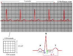 How To Read Cardiogram Chart How To Read An Ekg Strip