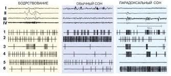 Реферат Психология и физиология сна Суммарная электрическая активность i iv и активность одиночных нейронов 1 6 в цикле сон бодрствование у кошки i кора больших полушарий ii глаза