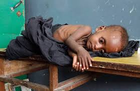 starving american child. Wonderful Child Famine Strikes Again Will America Respond Starving Child Inside Starving American Child Y