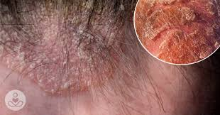 How to Cure Scalp Eczema: The Natural Remedy You Need to Know   The ...