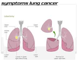 cancer versus asthma symptoms lung cancer versus asthma symptoms