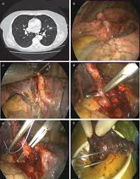 Stage 4 Lung Cancer Survival Rate Surgery For Nonsmall Cell Lung Cancer European Respiratory Society