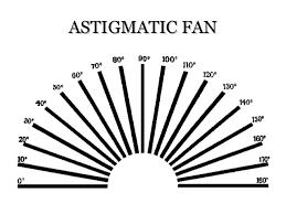 Astigmatism By Sumayya Naseem