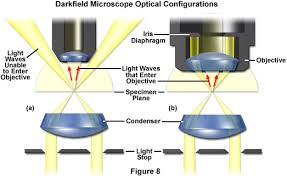 dark field microscopy zeiss microscopy online campus microscopy basics enhancing