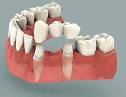 Your Comprehensive Guide to Dental Bridges