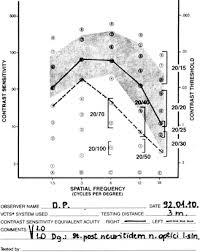 Examination Of Contrast Sensitivity Springerlink
