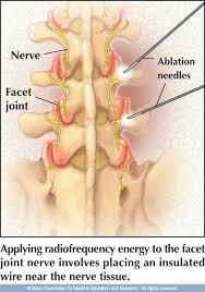 Rf ablation spine