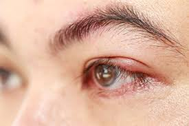 it s a mon but frustrating problem red swollen eyelids heat and pain radiating from the inflammation dry skin flaking around your eyelashes