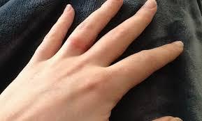 Wedding Rings Wedding Ring Rash Extraordinary Rash From Wedding